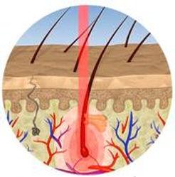 頭皮表面ではなく、低出力レーザ―の光が毛根内部まで到達することが最大のポイントです。
