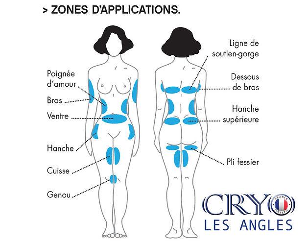 Zone traité par cryolipolyse