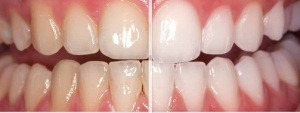 Brighter, Whiter Teeth