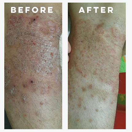 Psoriasis before and after_new.png