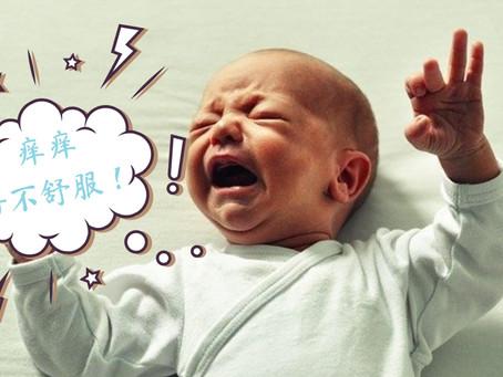 【3大原因】为什么宝宝容易得湿疹?