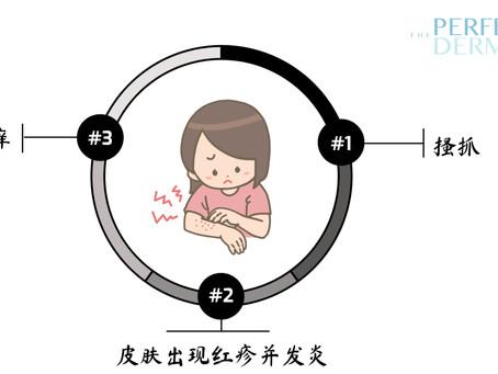 宝宝湿疹【11大不能】🔥