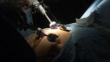 Obezite ameliyatları sonrası oluşabilecek metabolik komplikasyonlar nasıl önlenir?