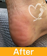 footcare_13-2.jpg