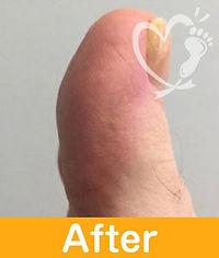 footcare_7-2.jpg