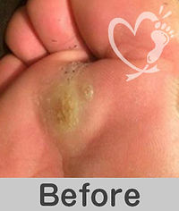 footcare_9-1.jpg