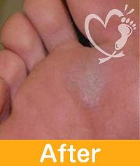 footcare_9-2.jpg