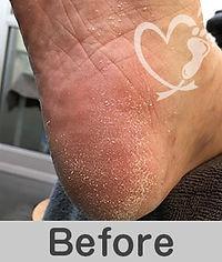 footcare_13-1.jpg