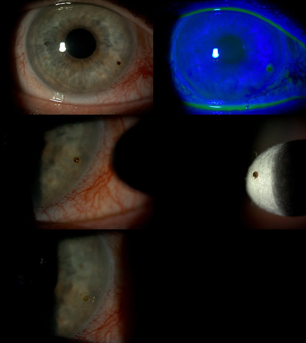 Corneal foreign body removal.