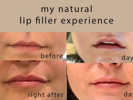 I Wanted Natural Looking Plumped Lips. My Lip Filler Experience.