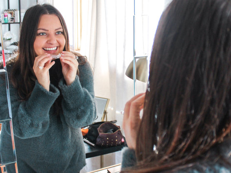 Getting Ready for the Wedding! Teeth Edition. Sharing Our At Home Teeth Whitening Routine