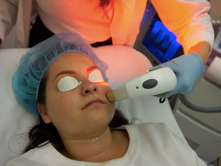My Experience with Microneedling and IPL Photofacial