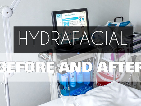 My First Hydrafacial Experience.... Is It Worth The Hype? + VIDEO