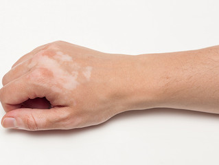 Ulike typer Vitiligo