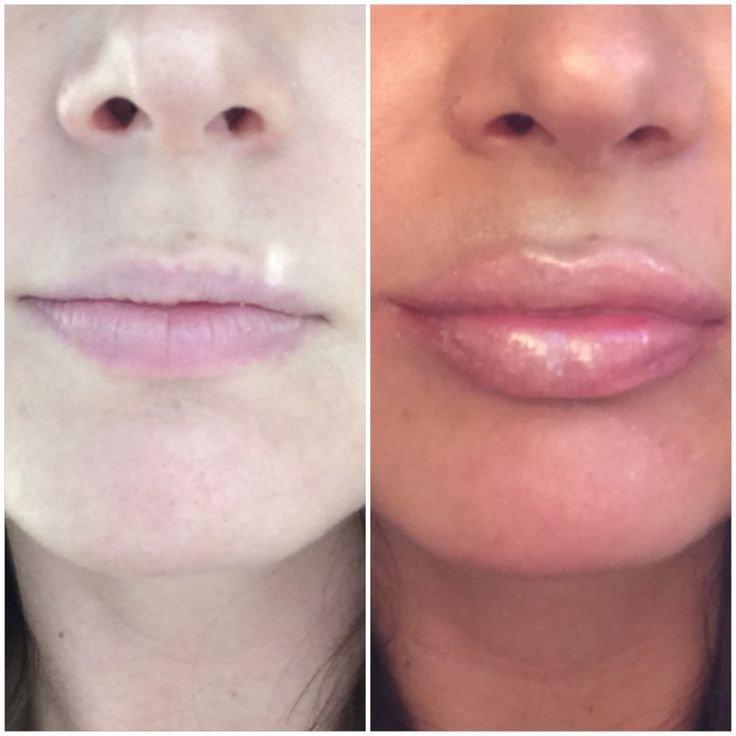 0.5 ML Lip Filler