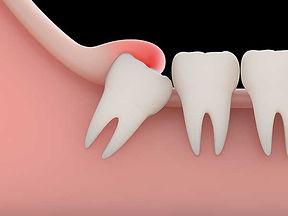 wisdom-teeth-diagram.jpg