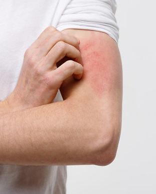 dermatite.jpg