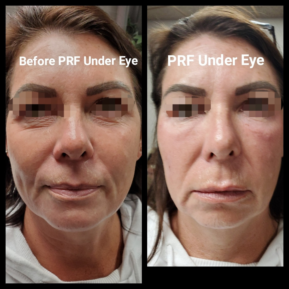 PRF Under Eye Before and After.JPG