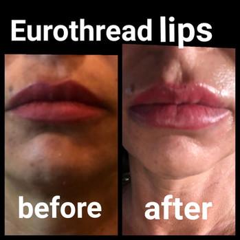 Eurothread lips.JPG