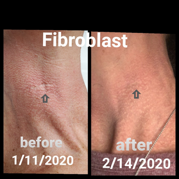 Fibroblast before and after.png
