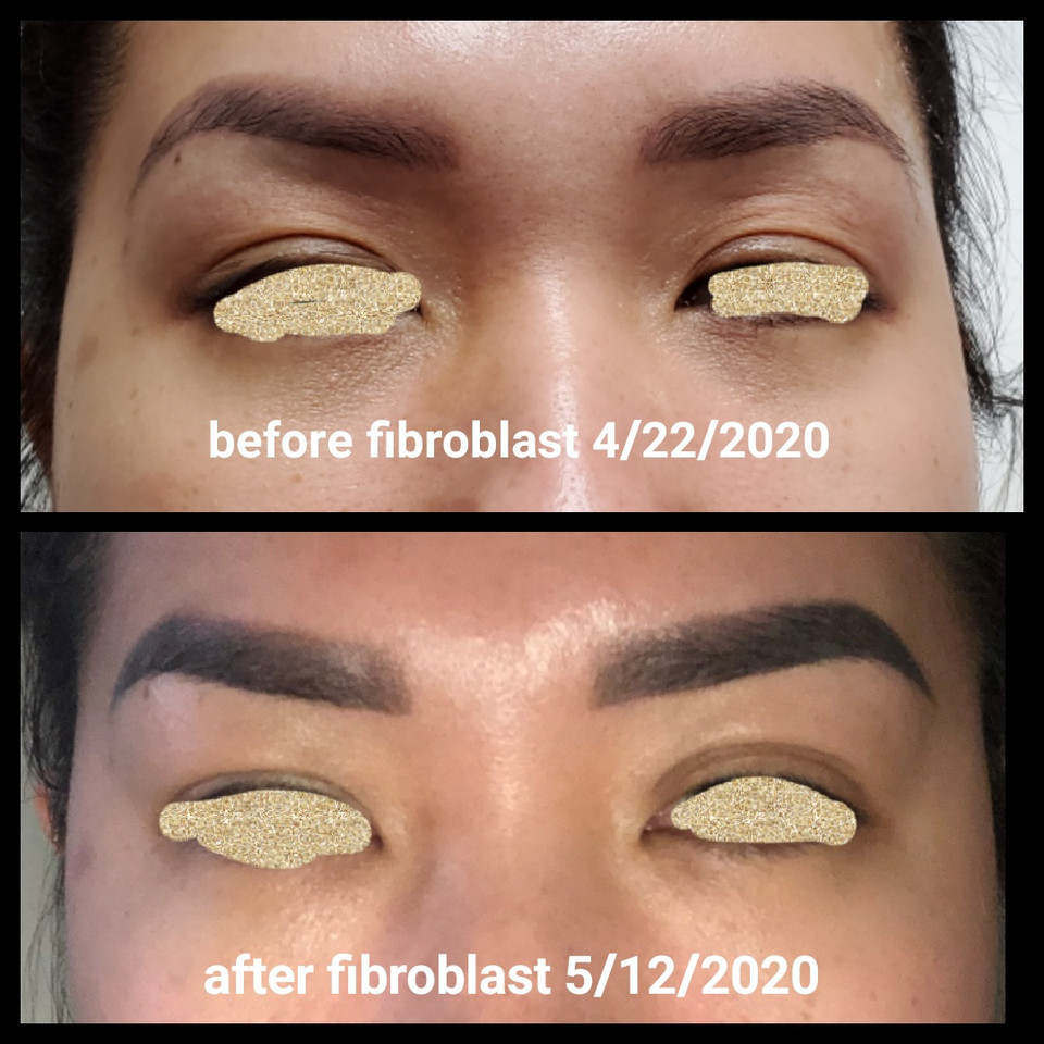 fibroblast upper eyelids before and afte