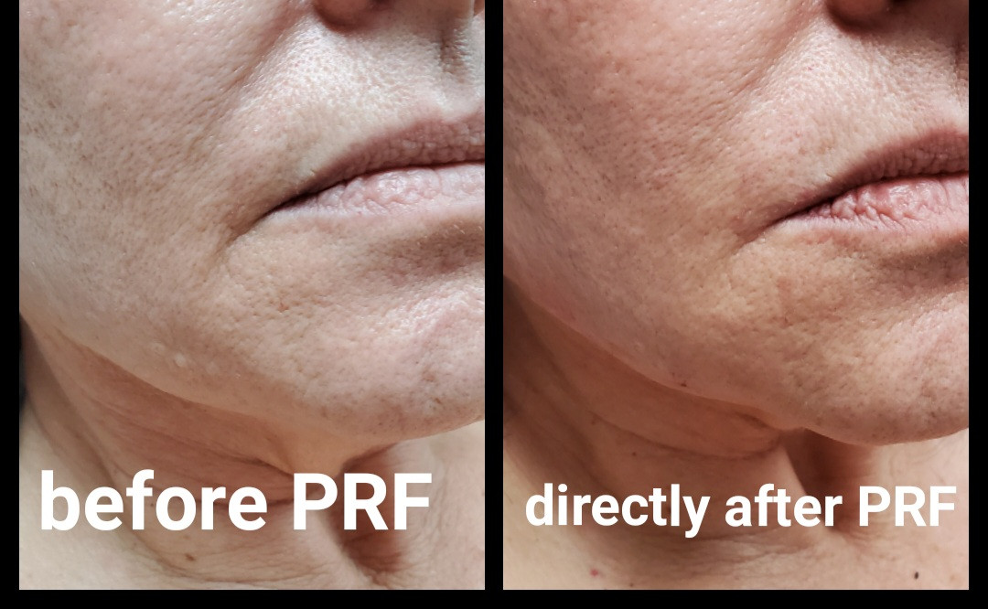 PRF Treatment on Lower Face