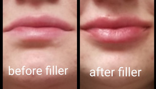 Before and After Lip Filler utilizing Versa