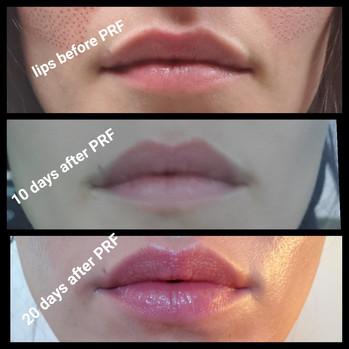 PRF Post Lips.JPG