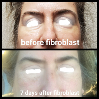 Before and after Fibroblast upper and lo