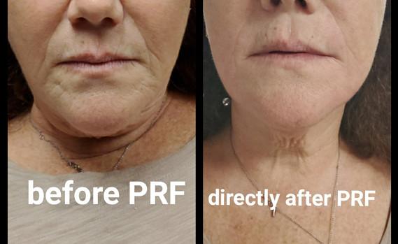 PRF Treatment Lower face.jpg