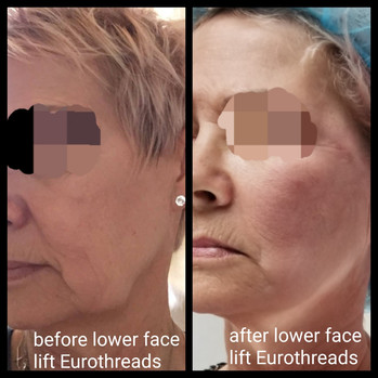 Before and After Non-Surgcial Lower Face Lift Eurothreads