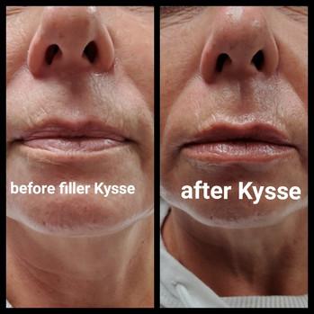 Restylane Kysse Lip Filler Before and Af