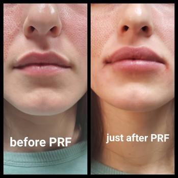Lip PRF.JPG