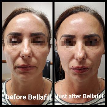 Pre and Post Bellafill.JPG