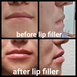 lip filler Juvederm B&A.JPG