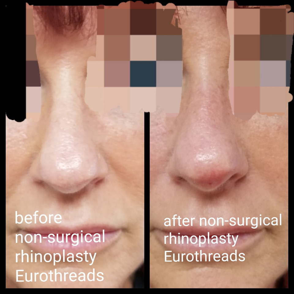Before and After Non-Surgical Rhinoplasty Eurothreads
