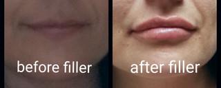 Before and After Lip Filler utilizing Juvederm Ultra