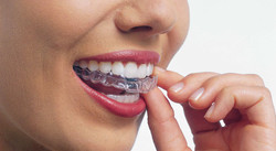 Invisalign-ethos-orthodontics