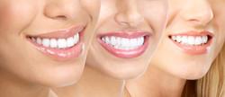 ned-colovic-insurance-financial-windsor-ontario-employee-dental-care