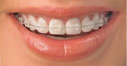 Ceramic-Braces-Carousel-Orthodontics