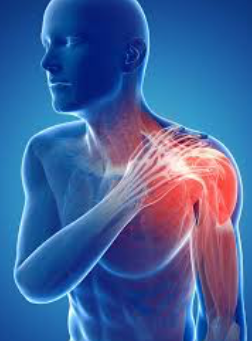Occupational Therapy and the Shoulder
