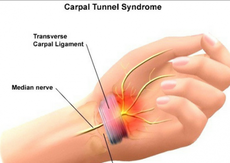 Carpal Tunnel Syndrome and Reducing Pain