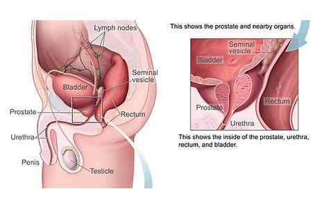 prostata-2.jpg