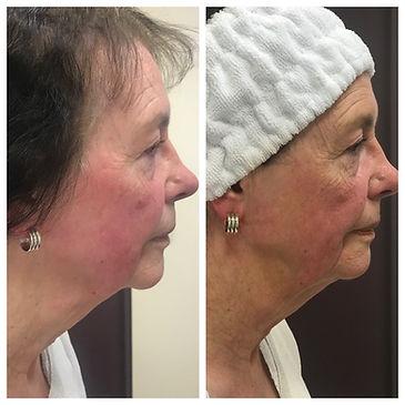 HIFU Non-surgical Facelift
