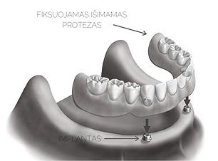 dantų protezas