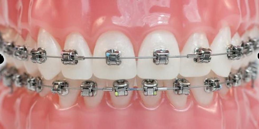 Especialização Ortodontia e Ortopedia Funcional dos Maxilares