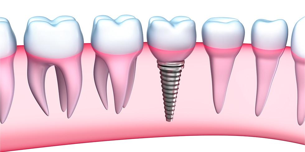 Aperfeiçoamento em Implantodontia