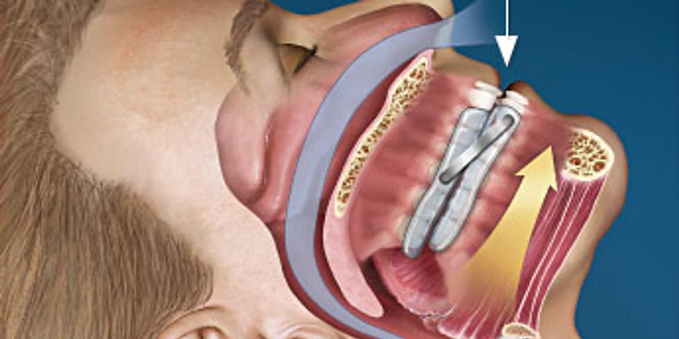 Tratamento de Distúrbios do Sono (Ronco e Apneia do Sono + Bruxismo)