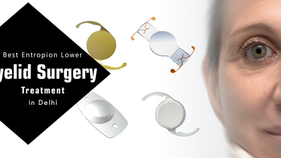 Best Entropion Lower Eyelid Surgery Treatment in Delhi India