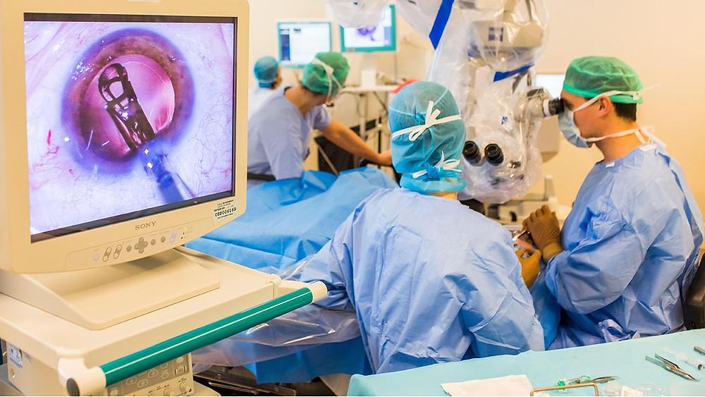 Eye Doctor in Delhi